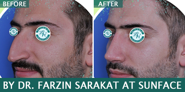 rhinoplasty dubai before after
