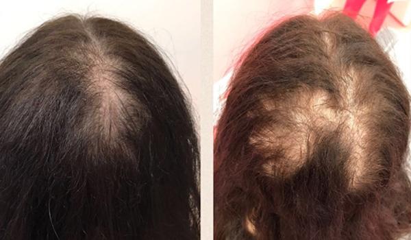 hair implant dubai