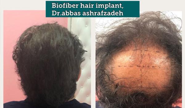 Hair Implant treatment
