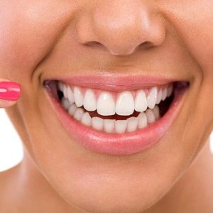 Dental Implant Provider in dubai