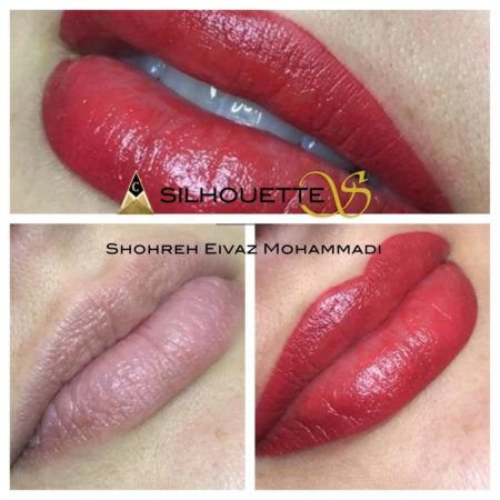 lips-1